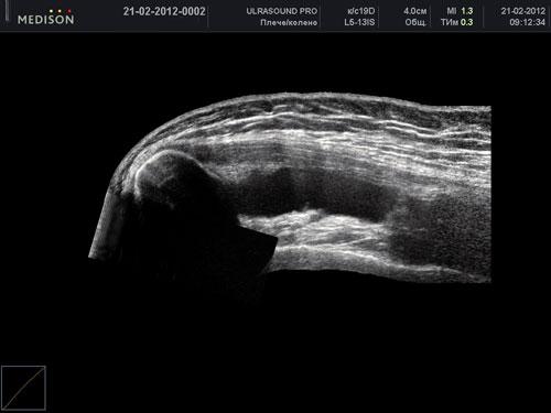 Узі плечового суглоба