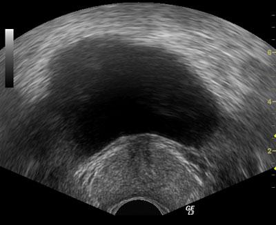 предстательная железа в норме (поперечный срез)