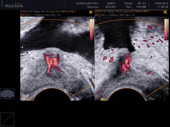 узи: воспаление периуретральной области предстательной железы